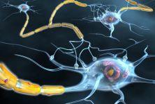 Příznaky roztroušené sklerózy